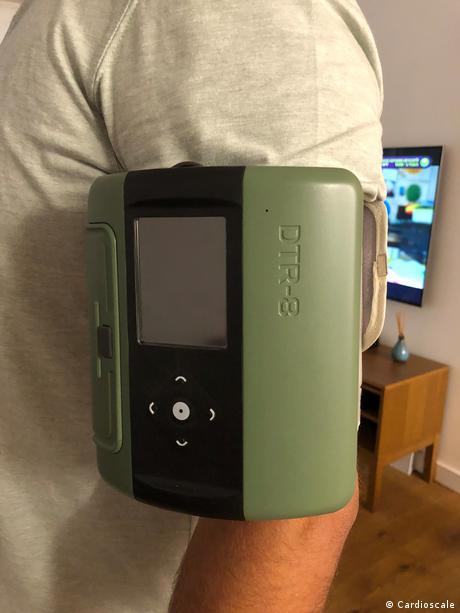 Cardioscale Messgerät am Arm eines Patienten