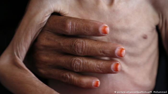 زنی کودکی با سوء تغذیه در بیمارستانی در یمن را در دست نگاه داشته است