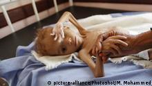 Jemen - Hungersnot
