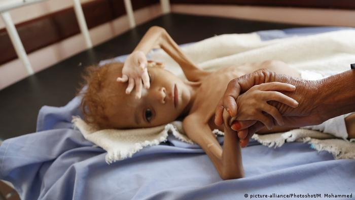 A malnourished child is seen at a hospital in Hajjah province, Yemen.