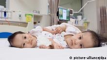 Ärzte wollen siamesische Zwillinge aus Bhutan trennen