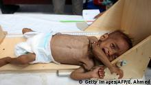 Jemen Konflikte