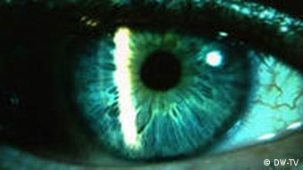 استفاده مداوم از لنز موجب نازکی قرنیه میشود