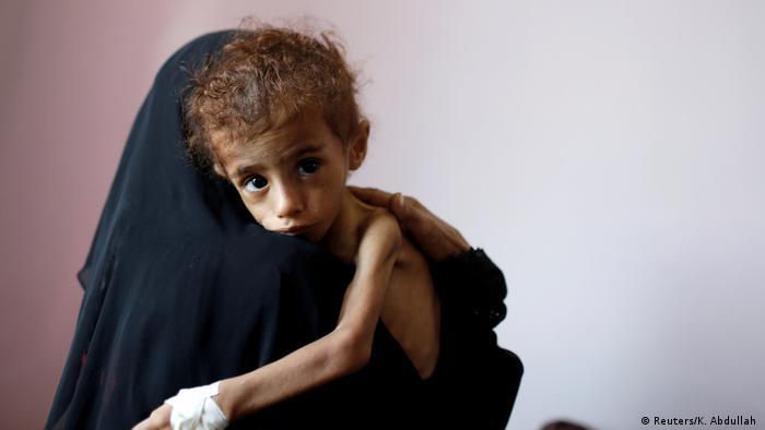 ООН: В Йемене из-за войны каждый 10 минут умирает ребенок