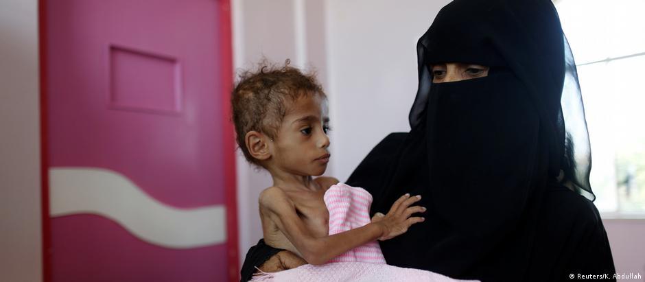 Ao menos 250 mil iemenitas estão na mais severa Fase 5 na escala global de insegurança alimentar a desnutrição