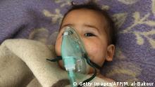 Syrien Krieg Provinz Idlib 2017 | Kind nach mutmaßlichem Giftgasangriff