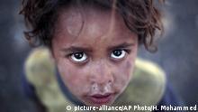Jemen 2016 Kind von Binnenflüchtlingen bei Sanaa