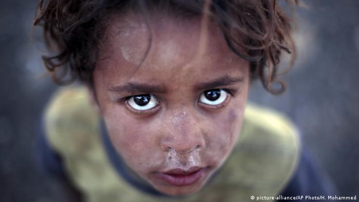 A child in a camp for internally displaced people in Yemen