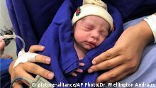 Brasilien Sao Paolo Baby aus Gebärmuttertransplantation
