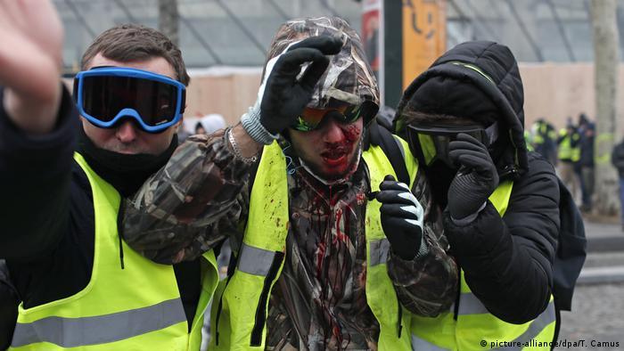 Протестующие во время акции желтых жилетов, один из них ранен