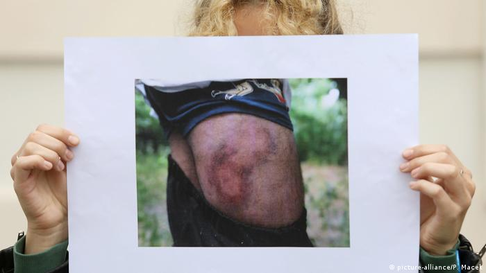An activist shows a photo of a refugee on the border with Croatia with extensive bruising (picture-alliance/P. Macek)