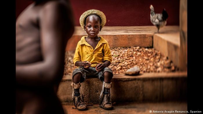 Garoto com próteses nas pernas num centro para órfãos no Togo