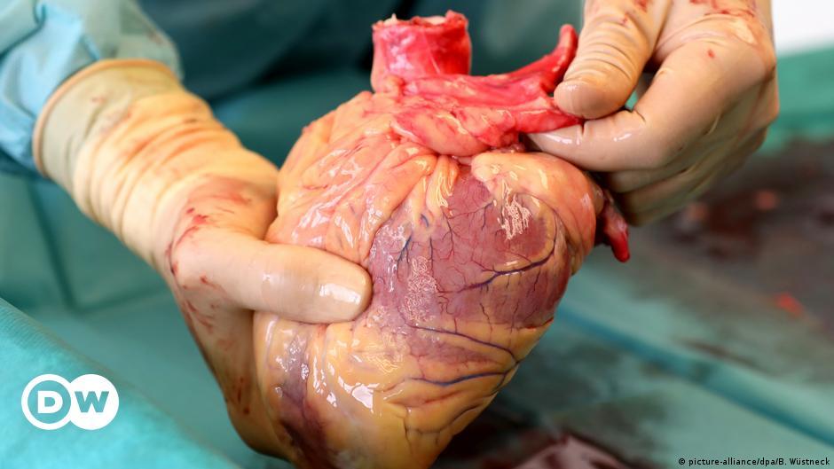 Organ donations: How to make up the shortfall
