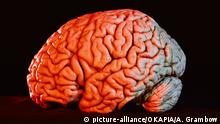 Gehirn Präparat