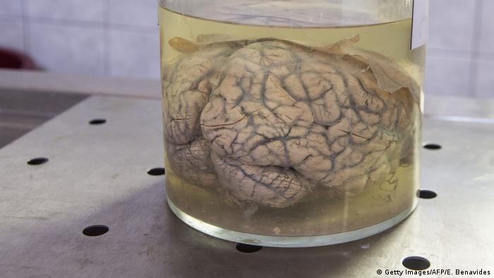 Peru Lima - Gehirn in Formaldehyd beim Museum of Neuropathology