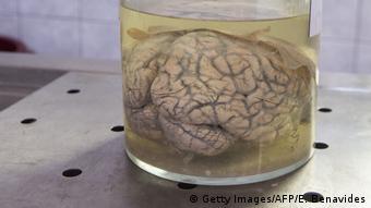 Человеческий мозг в формалине