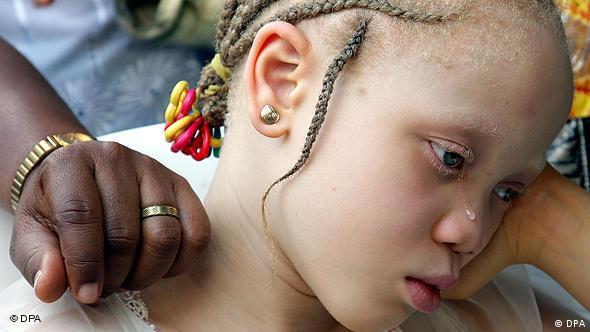 Afrička djevojčica s poremećenim pigmentima