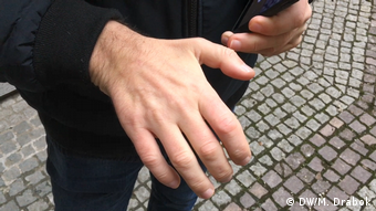 Після клінічної смерті пальці Олега погано розгинаються