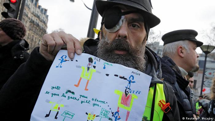 French Yellow Vest activist Jerome Rodrigues (Reuters/P. Wojazer)