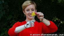 England bionische Armprothese