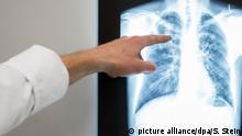 Deutschland Feinstaub - Röntgenbild Lunge