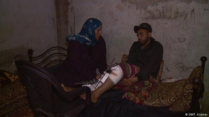 Palestinian Mahmoud Abu Zer, who was shot by Israeli snipers