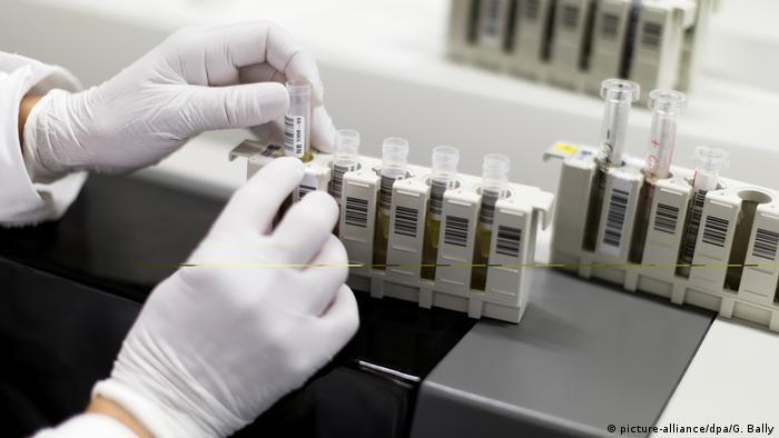 Изучение ВИЧ-инфекции в лаборатории