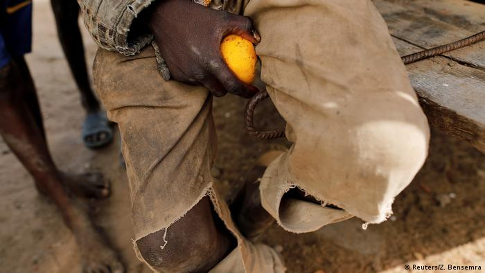 A close-up shot of a boy's knees as he begs on the streets. His trousers are ripped and dirty and he is holding an orange fruit.