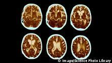 Alzheimer CT