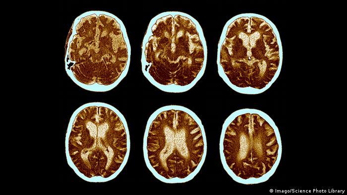 Computer-Tomographie von einem Alzheimer Gehirn