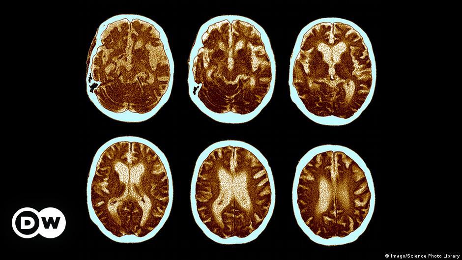 Protein aus der Leber kann Alzheimer auslösen