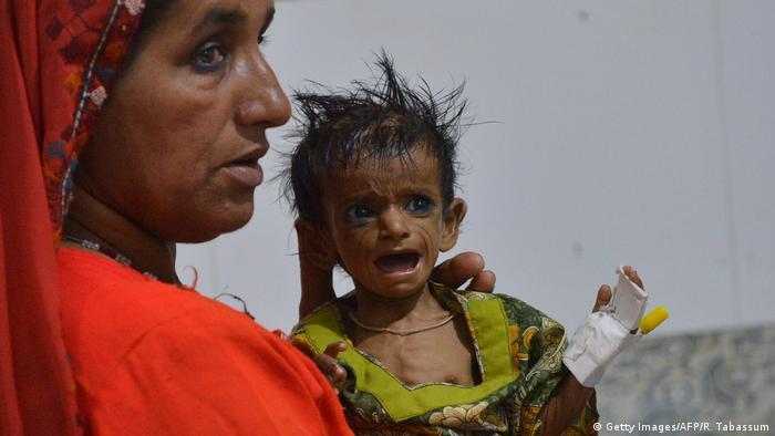 Pakistan Mithi Mangelernährung