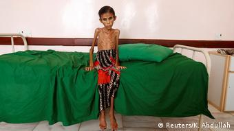 Jemen Krieg Hungersnot