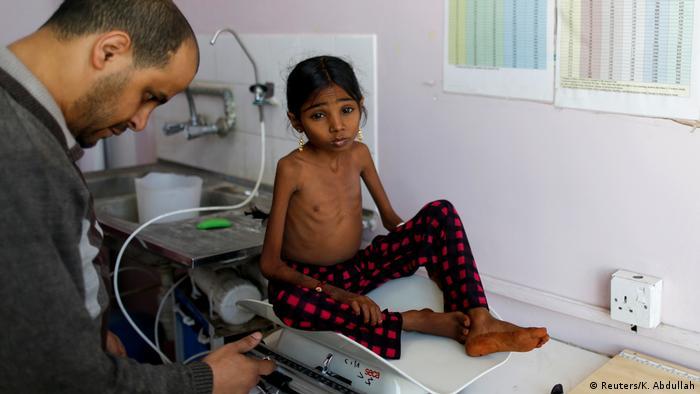 Ein unterernährtes Mädchen im Jemen wird gewogen
