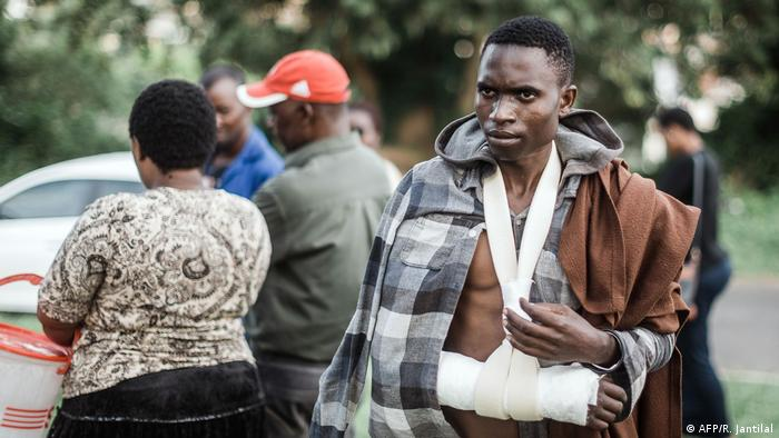 A victim of xenophobic attacks with his arm in a sling