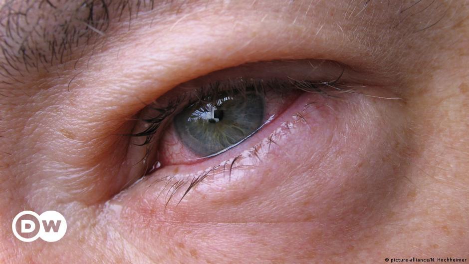 شعيرة العين التهاب مؤلم يمكن التخلص منه بوصفات منزلية منوعات نافذة Dw عربية على حياة المشاهير والأحداث الطريفة Dw 02 04 2019