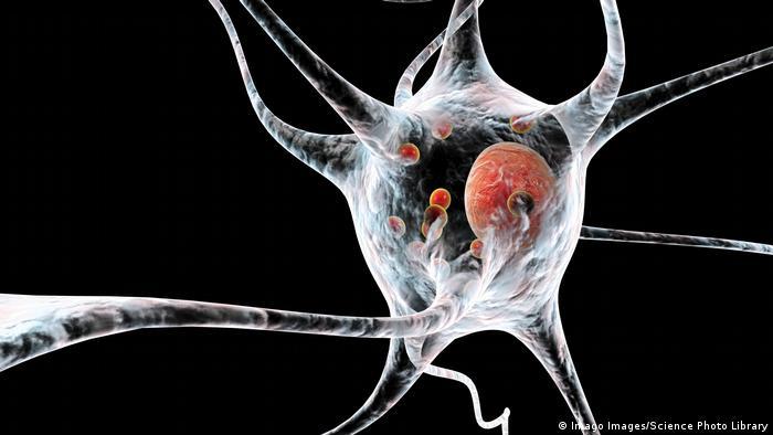 Proteine (Lewy Körper) lagern sich bei der Parkinson-Krankheit in Hirnzellen ab