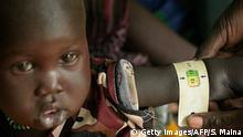 Sudan Malaria-Patienten in Udier (Getty Images/AFP/S. Maina)