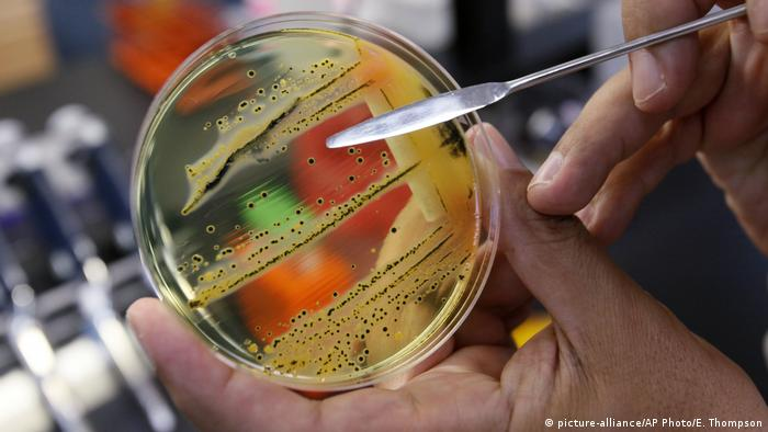 USA Salmonellen in Petrischale (picture-alliance/AP Photo/E. Thompson)