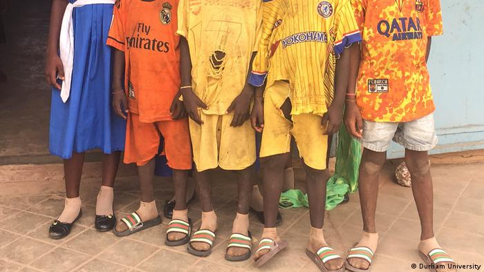 Kids in Gambia, wearing malaria-detection stockings. (Durham University)