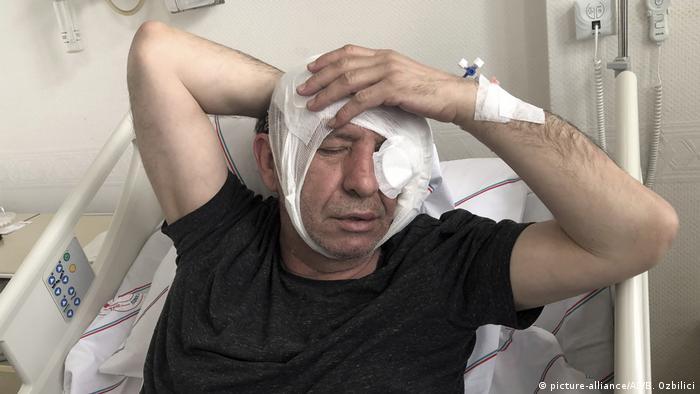 Türkei, Ankara: Yavuz Selim Demirag im Krankenhaus (picture-alliance/AP/B. Ozbilici)