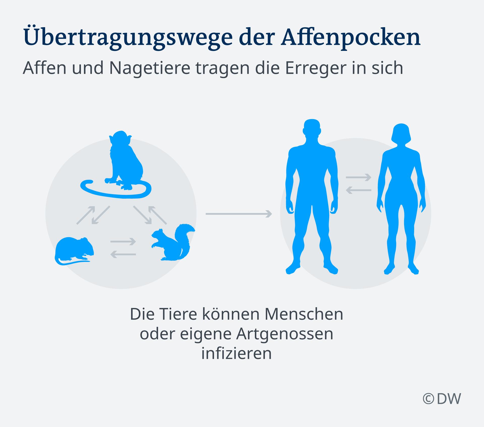 Infografik Affenpocken DE