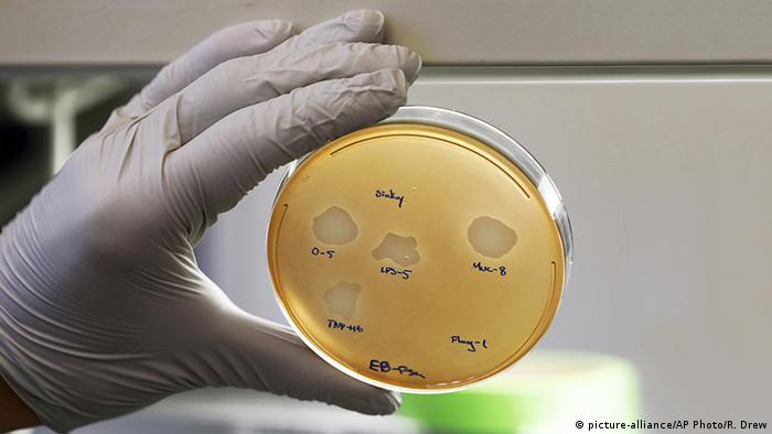 Petrischale mit Pseudomonas aeruginosa Bakterien