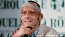 Niki Lauda after his accident in 1976