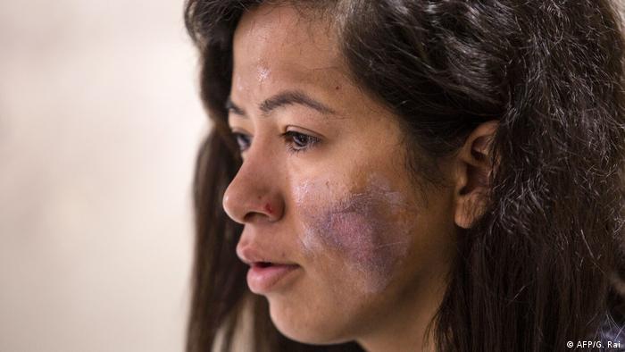 Ameesha Chauhan, montañista india, sufrió quemaduras en la cara cuando intentaba escalar el Everest.