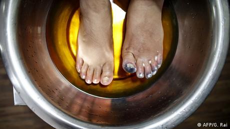 अमीषा चौहान 27 मई को काठमांडू अस्पताल में एक गर्म समाधान में अपने पैरों को डुबोती हैं।