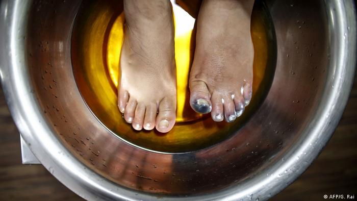 Ameesha Chauhan sumerge sus pies en una solución caliente en el hospital de Katmandú, el 27 de mayo.