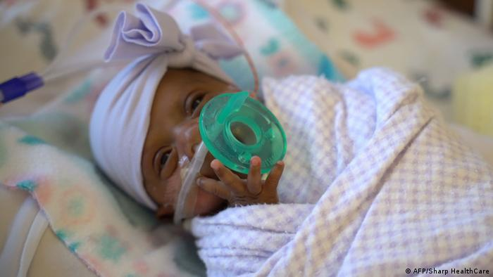 World′s smallest baby released from San Diego hospital | News | DW