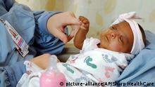 San Diego 252g Frühchen verlässt Krankenhaus