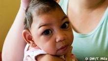 Mikrozephalie-Kinder in Brasilien